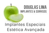 Logo Douglas Lima - Implantes & Sorrisos